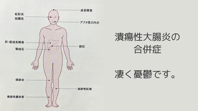 潰瘍性大腸炎 合併症