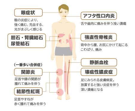 腸管外合併症
