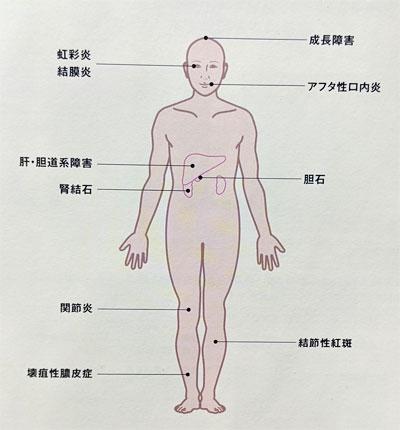 潰瘍性大腸炎 全身的に合併症